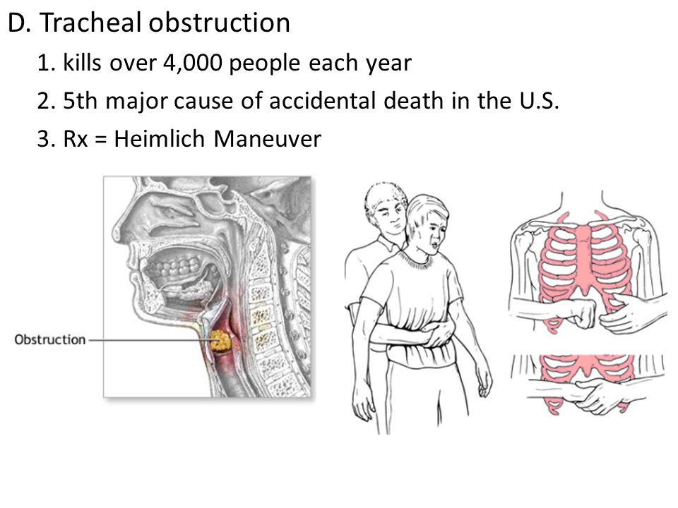 D. Tracheal obstruction