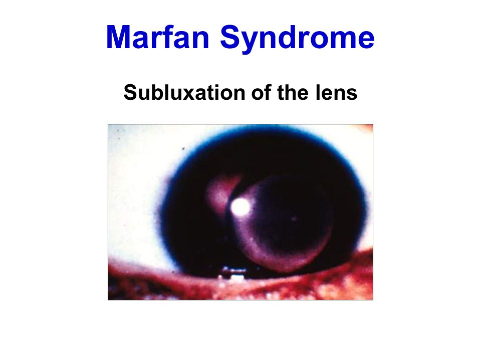 Subluxation of the lens