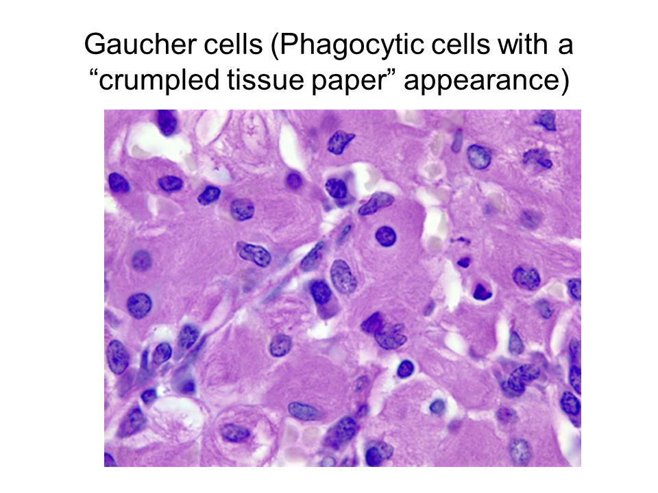 Gaucher cells (Phagocytic cells with a crumpled tissue paper appearance)