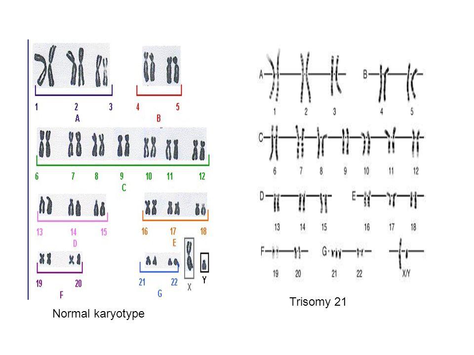 Trisomy 21 Normal karyotype