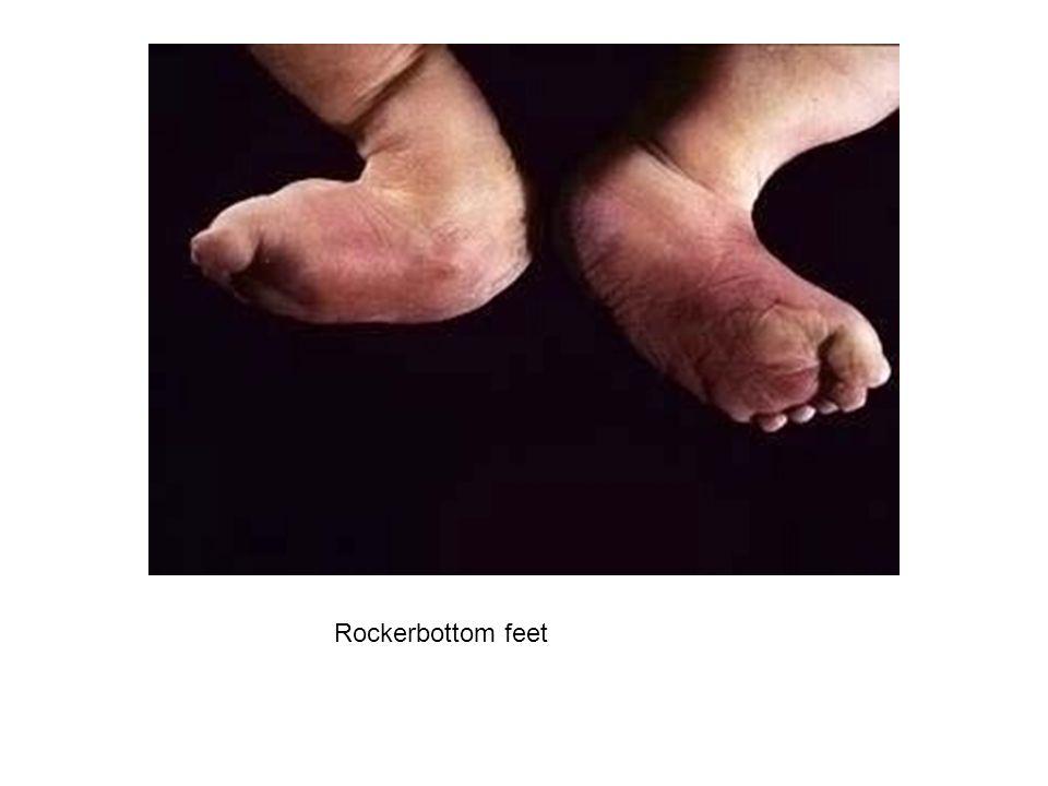 Rockerbottom feet