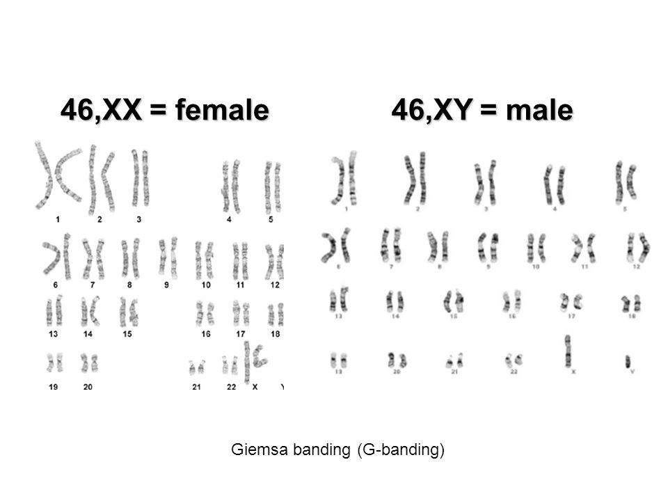 46,XX = female 46,XY = male Giemsa banding (G-banding)