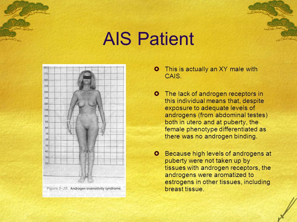 AIS Patient This is actually an XY male with CAIS.