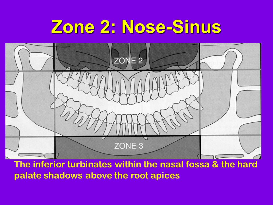 Zone 2: Nose-Sinus The inferior turbinates within the nasal fossa & the hard palate shadows above the root apices.