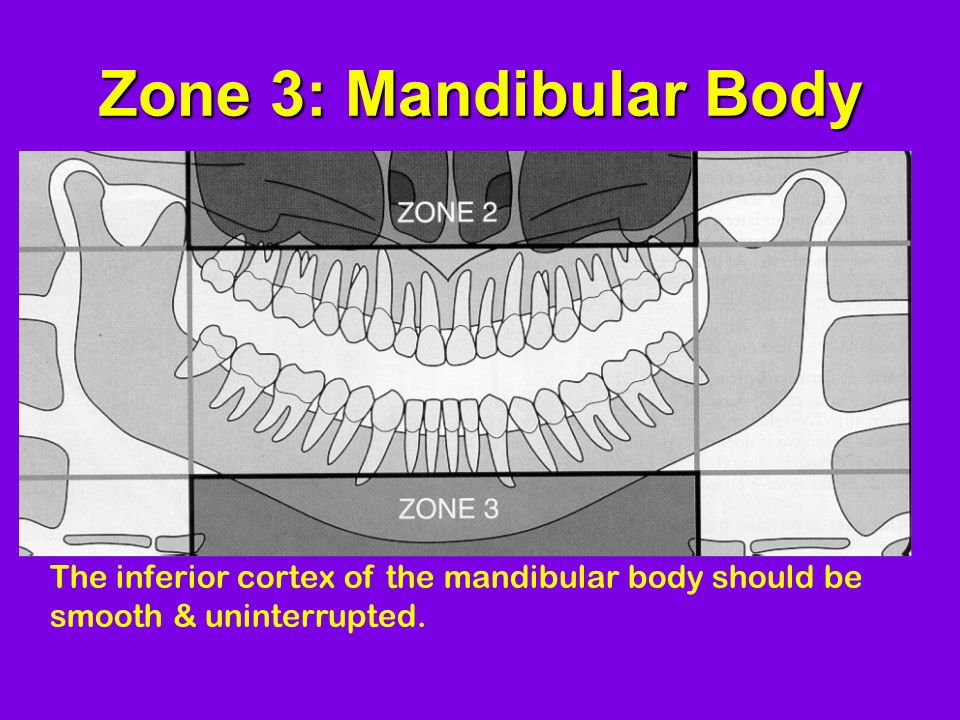 Zone 3: Mandibular Body The inferior cortex of the mandibular body should be smooth & uninterrupted.
