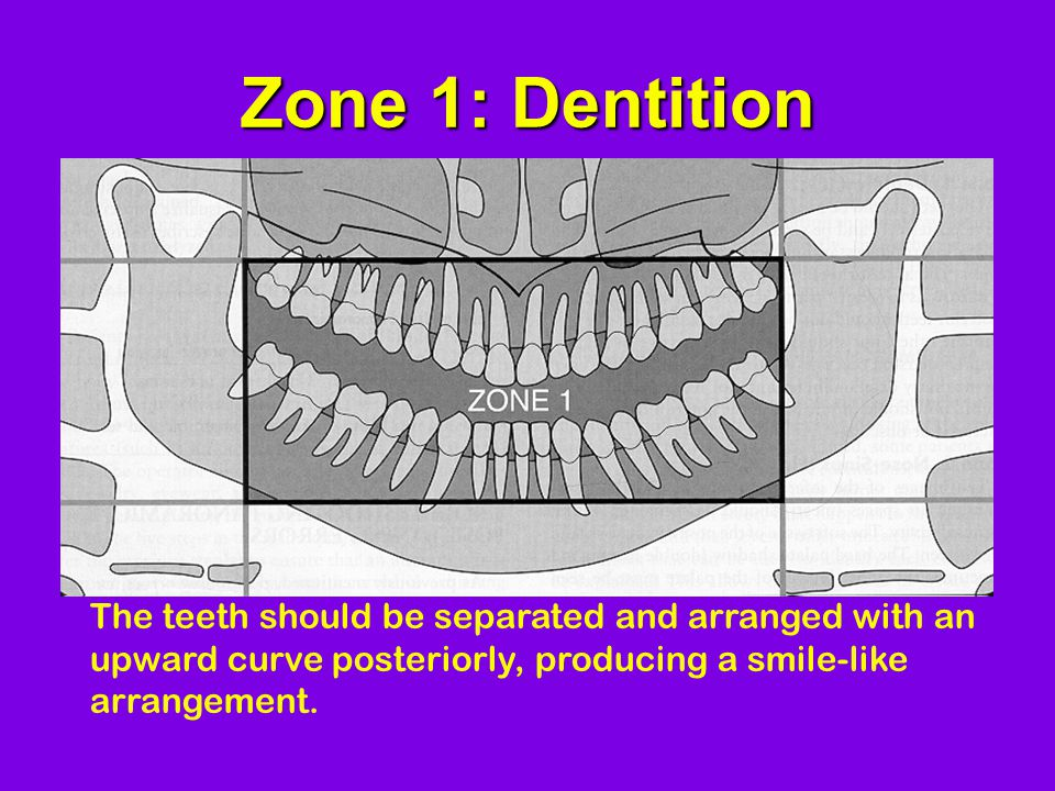Zone 1: Dentition The teeth should be separated and arranged with an upward curve posteriorly, producing a smile-like arrangement.