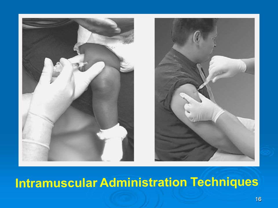 Intramuscular Administration Techniques