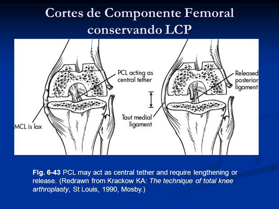 Cortes de Componente Femoral conservando LCP