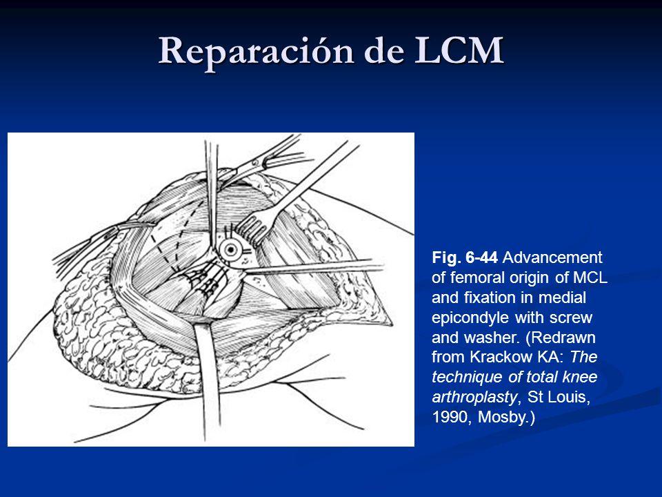 Reparación de LCM