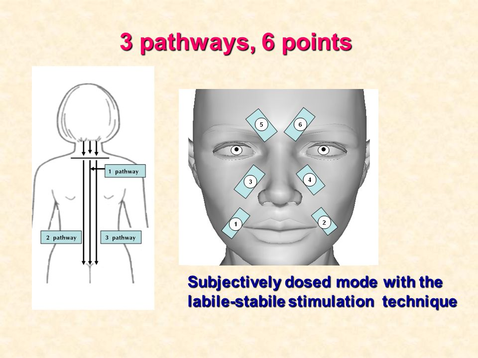 3 pathways, 6 points Subjectively dosed mode with the labile-stabile stimulation technique.