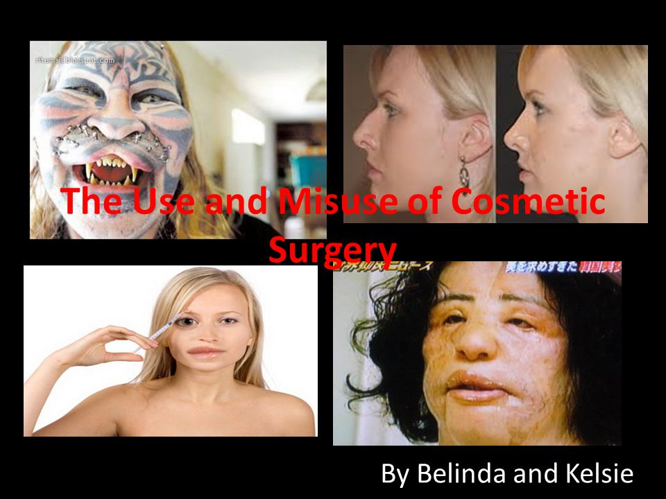 The Use and Misuse of Cosmetic Surgery