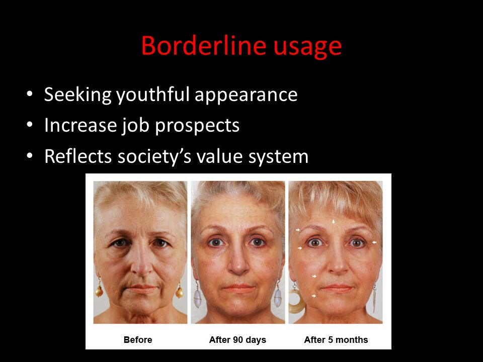 Borderline usage Seeking youthful appearance Increase job prospects