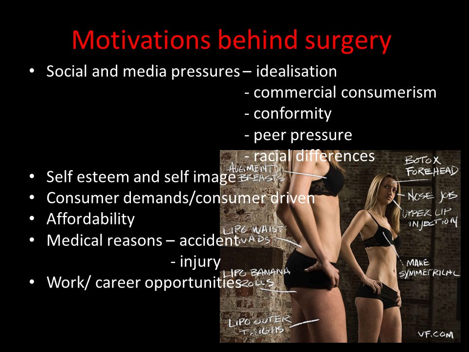 Motivations behind surgery