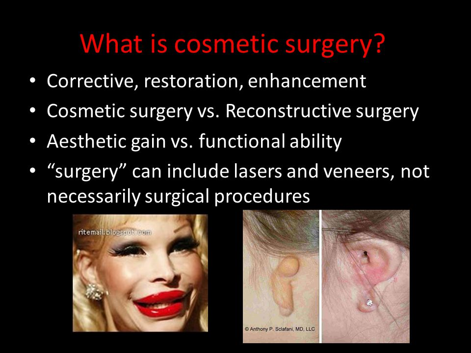 What is cosmetic surgery