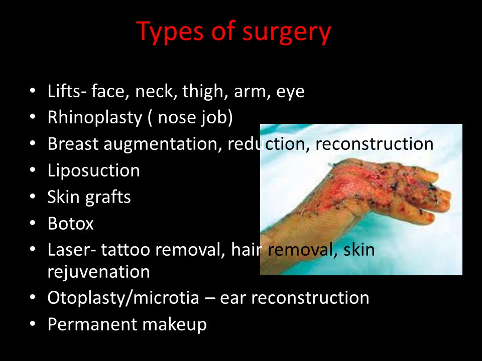 Types of surgery Lifts- face, neck, thigh, arm, eye