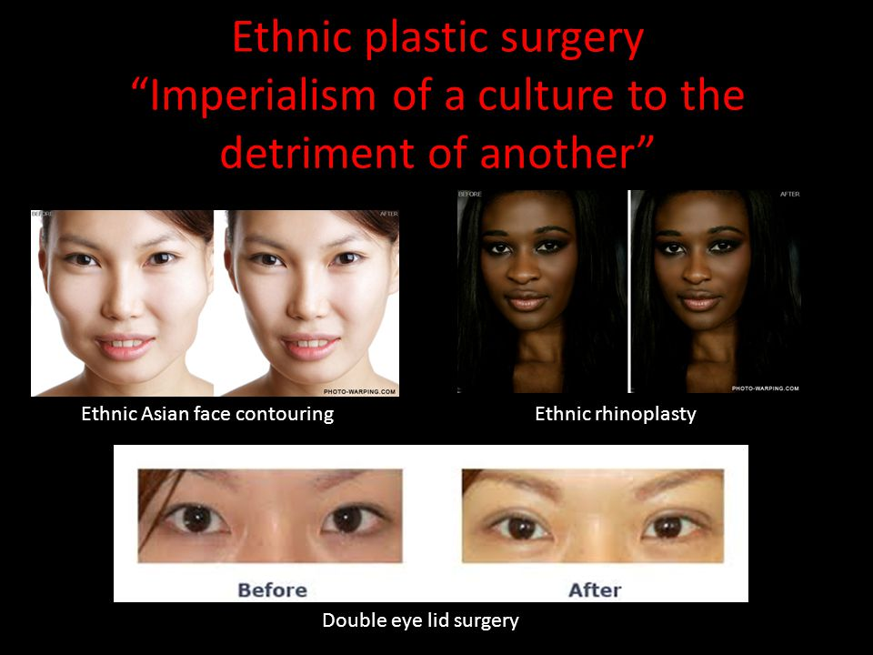 Ethnic plastic surgery Imperialism of a culture to the detriment of another