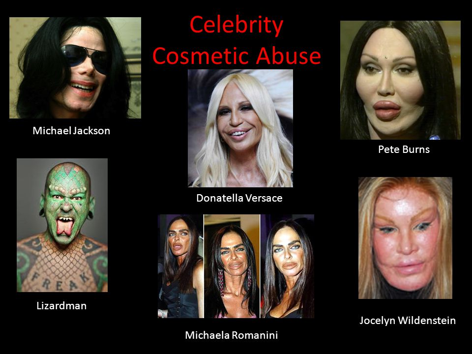 Celebrity Cosmetic Abuse