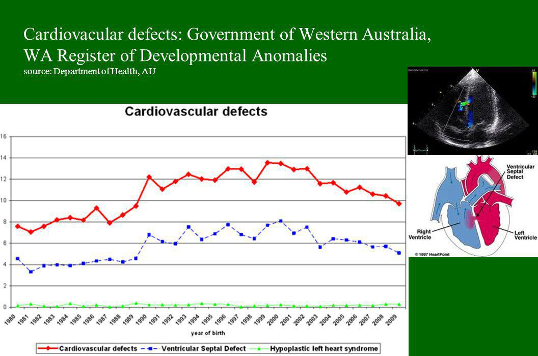 Cardiovacular defects: Government of Western Australia, WA Register of Developmental Anomalies source: Department of Health, AU