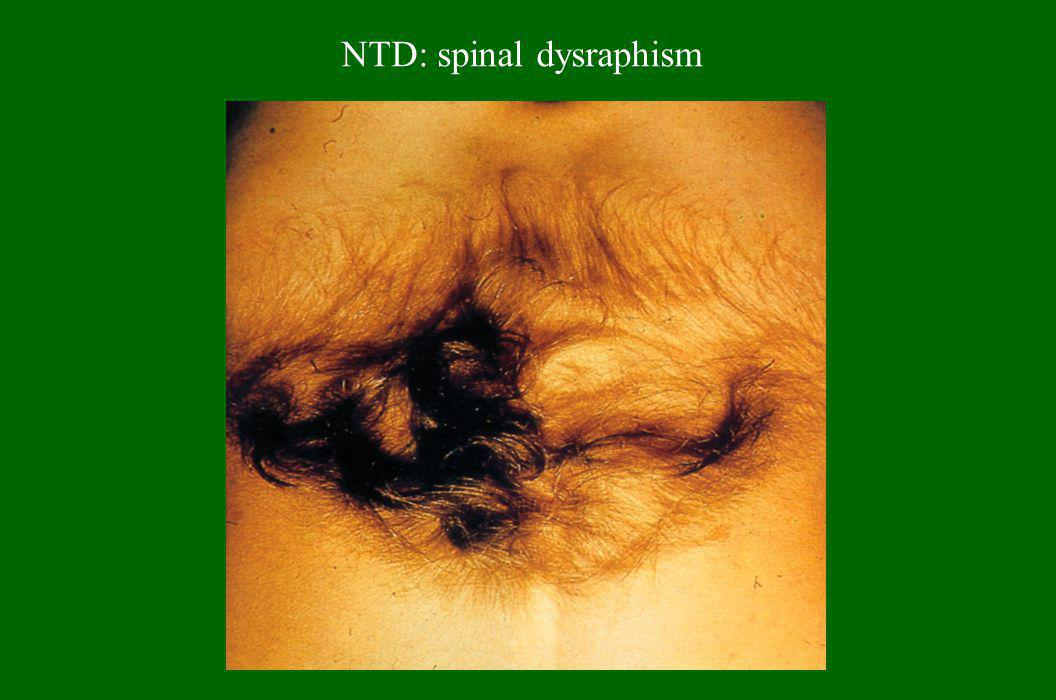NTD: spinal dysraphism