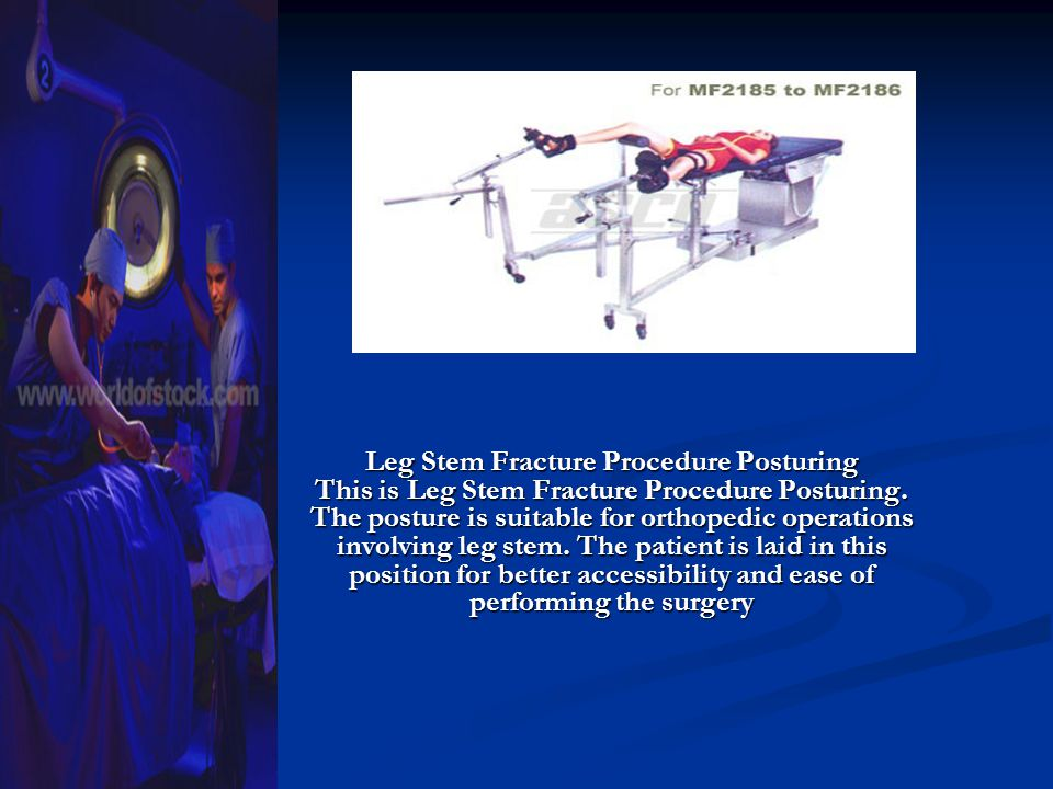 Leg Stem Fracture Procedure Posturing This is Leg Stem Fracture Procedure Posturing.