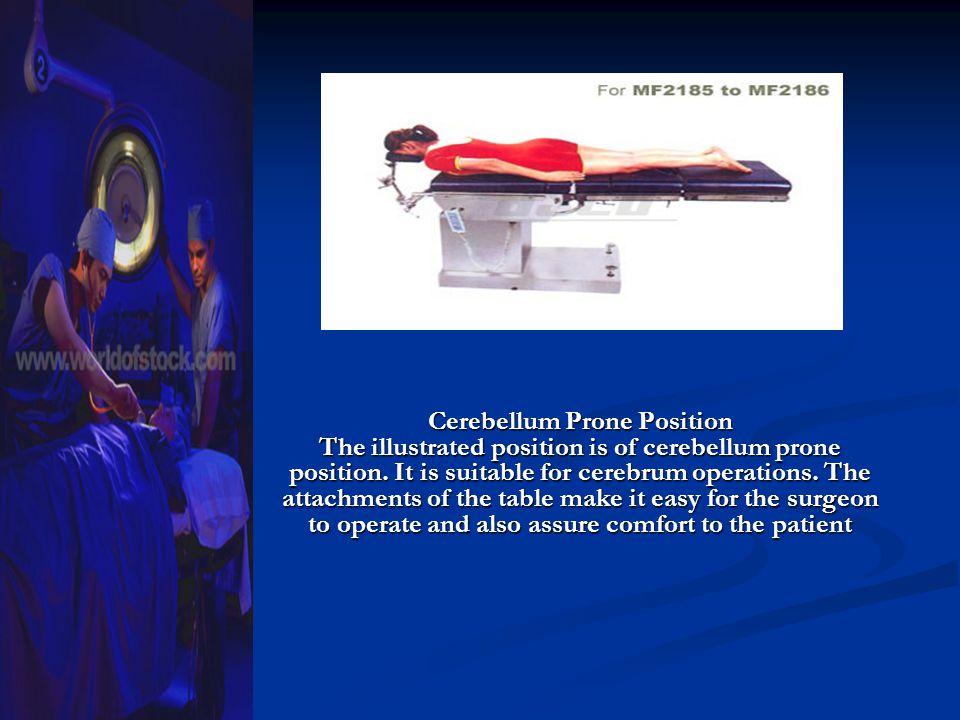 Cerebellum Prone Position The illustrated position is of cerebellum prone position.