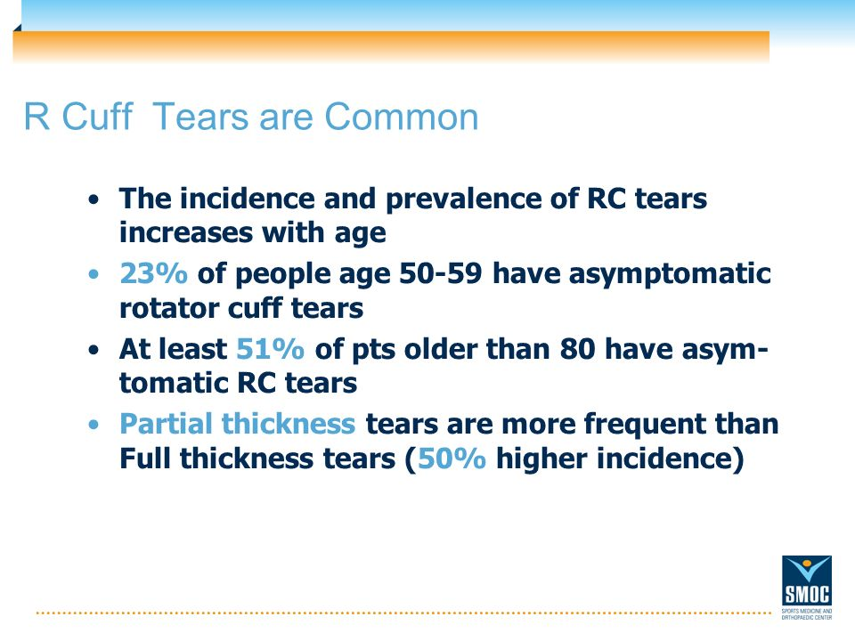 R Cuff Tears are Common The incidence and prevalence of RC tears increases with age. 23% of people age 50-59 have asymptomatic rotator cuff tears.