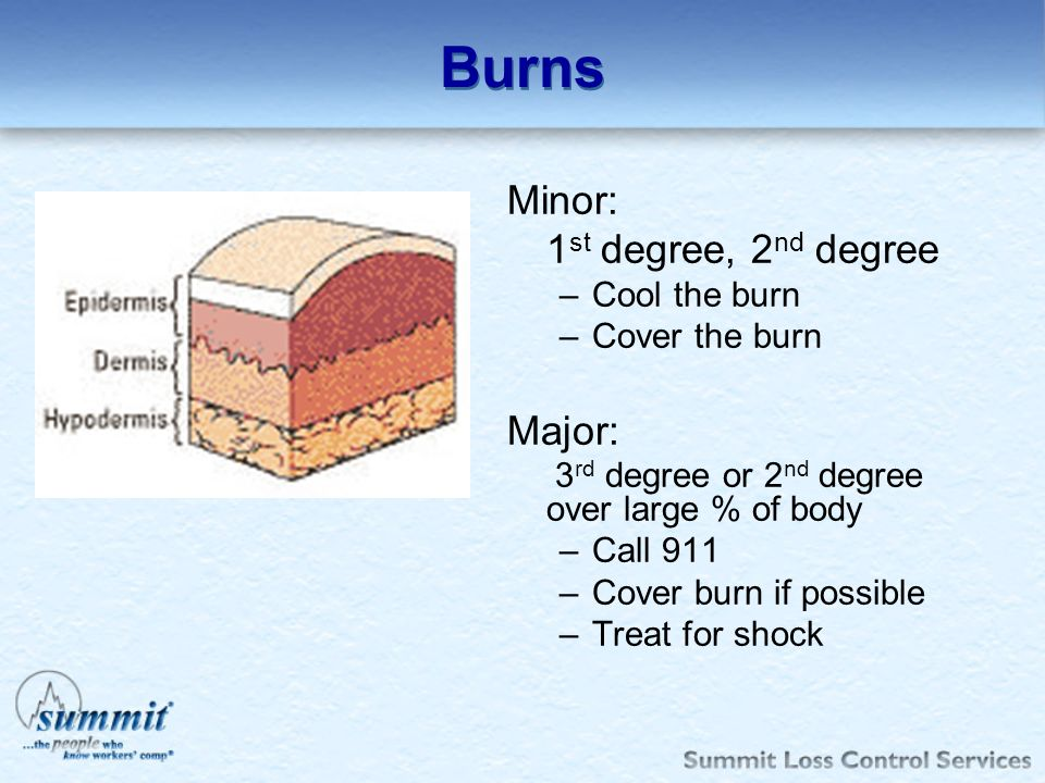 Burns Minor: 1st degree, 2nd degree Major: Cool the burn
