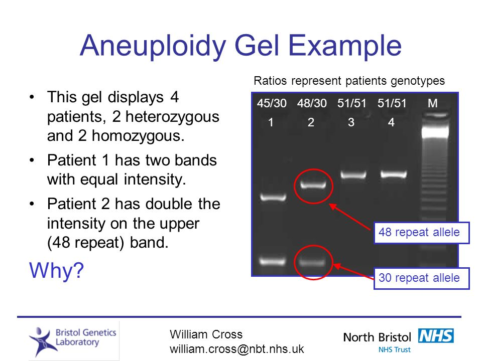 Aneuploidy Gel Example