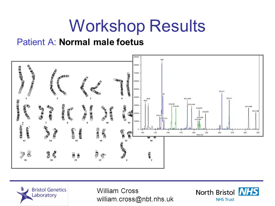 Workshop Results Patient A: Normal male foetus William Cross