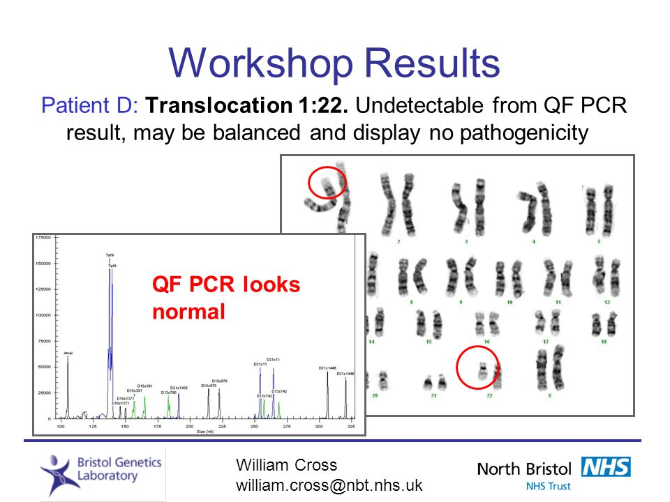 Workshop Results Patient D: Translocation 1:22. Undetectable from QF PCR result, may be balanced and display no pathogenicity.