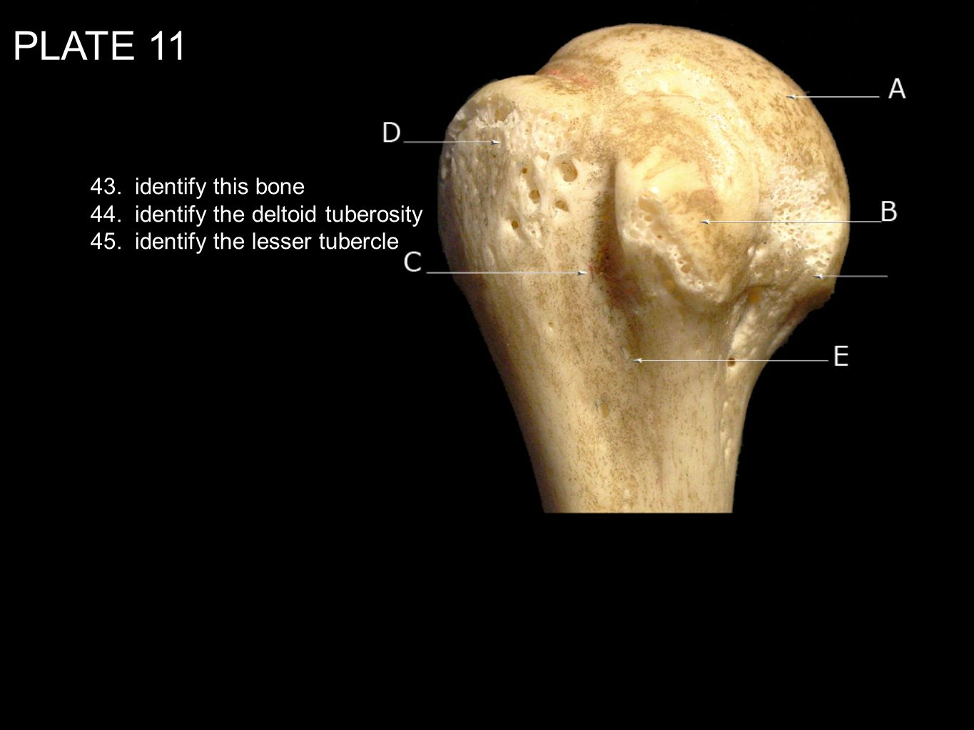 PLATE identify this bone 44. identify the deltoid tuberosity