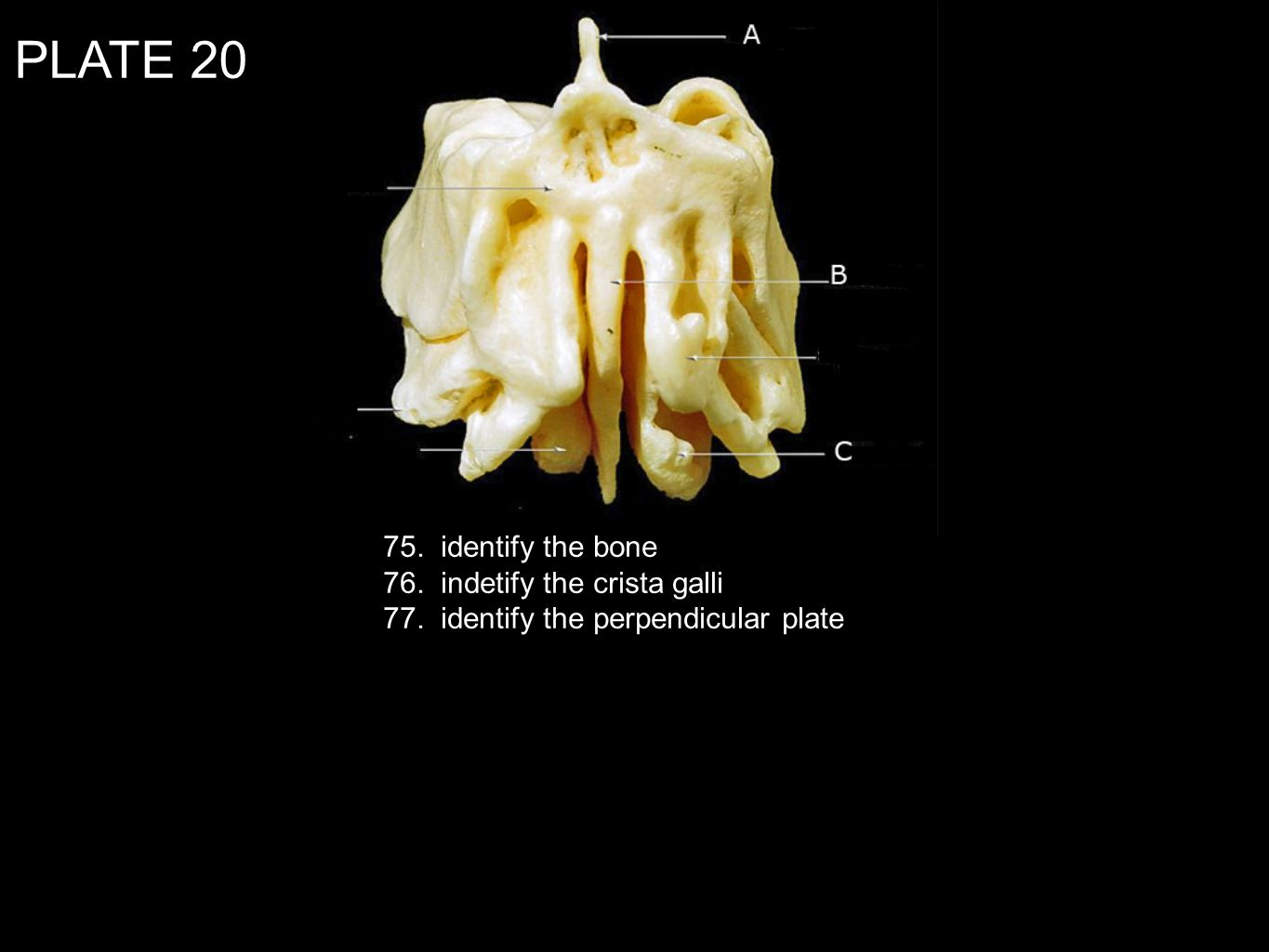 PLATE identify the bone 76. indetify the crista galli