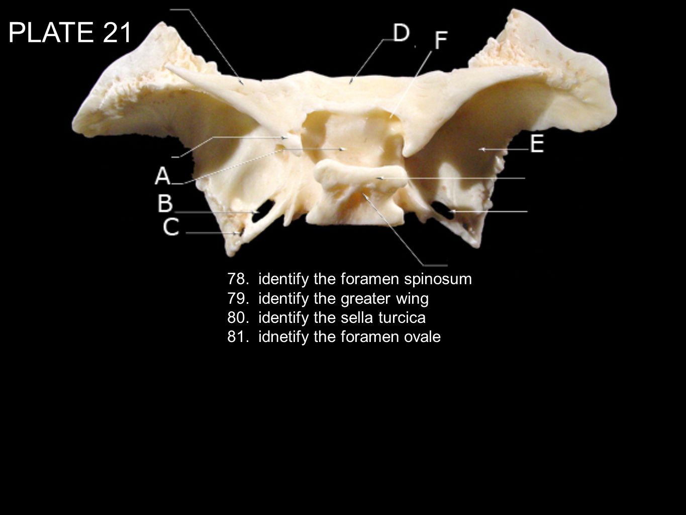 PLATE 21 78. identify the foramen spinosum
