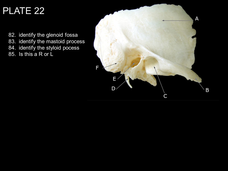 PLATE 22 82. identify the glenoid fossa