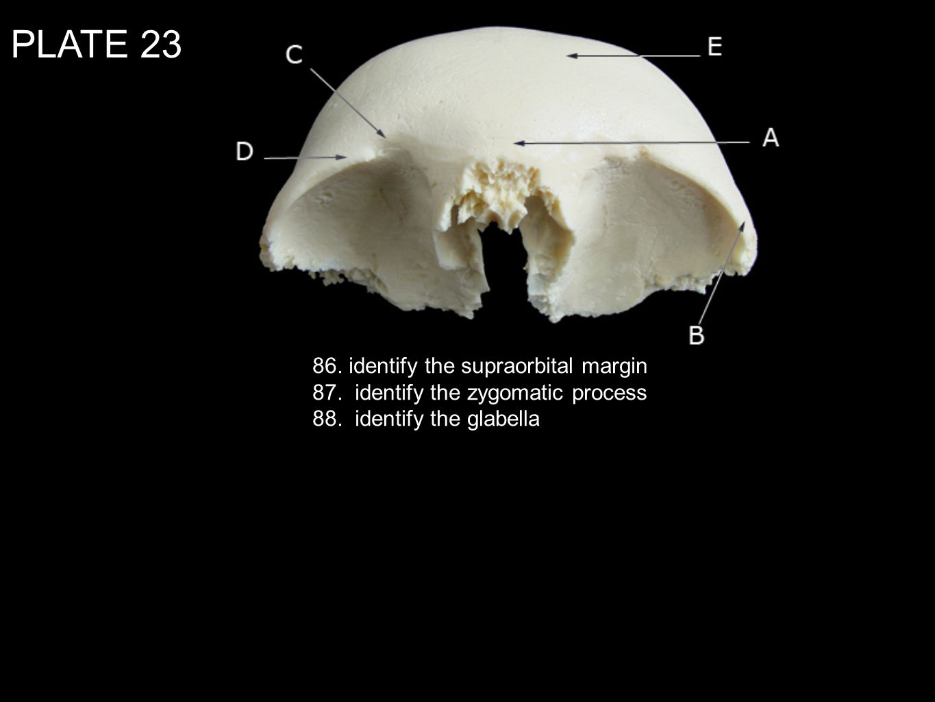 PLATE identify the supraorbital margin