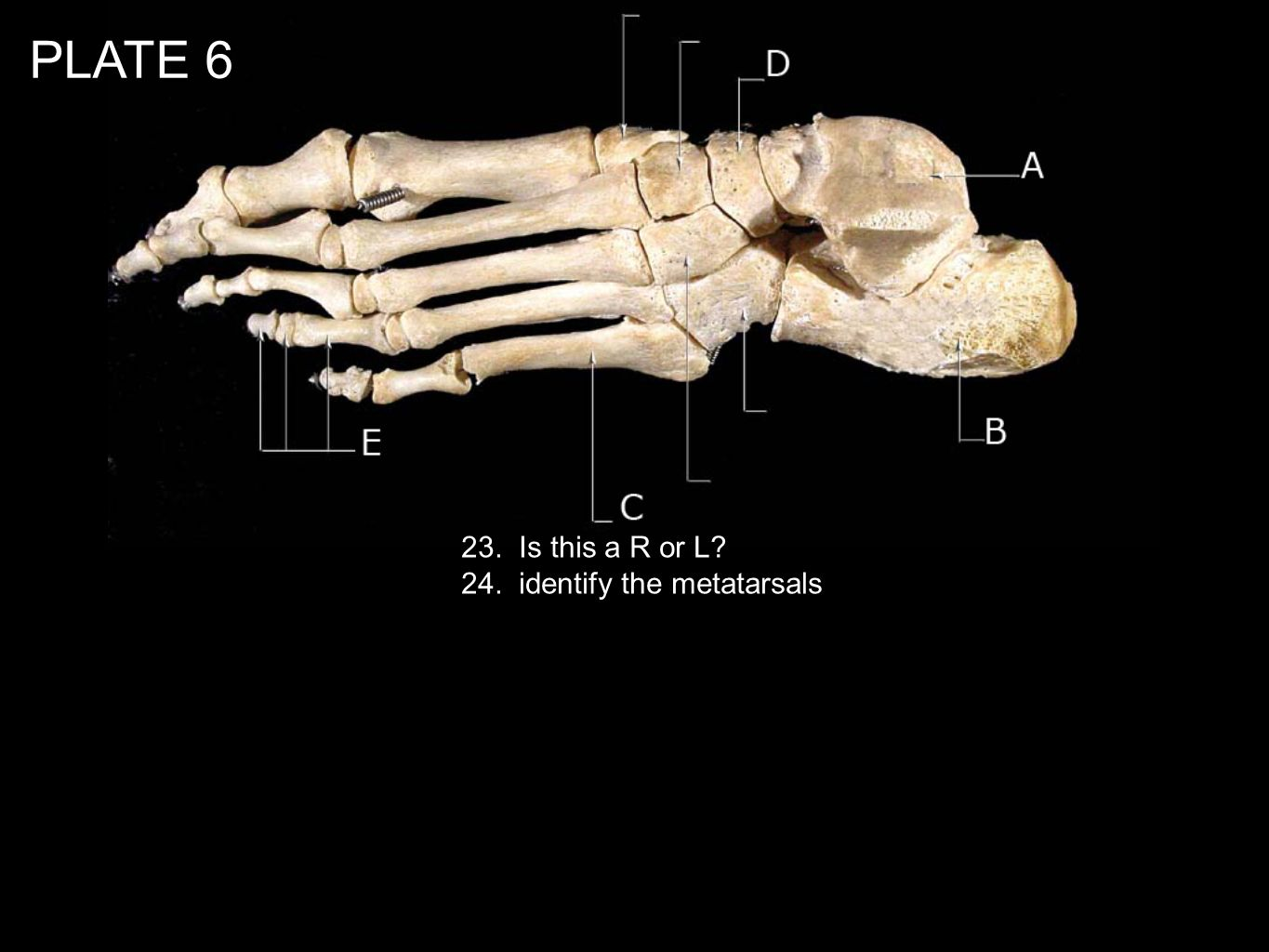 PLATE Is this a R or L 24. identify the metatarsals