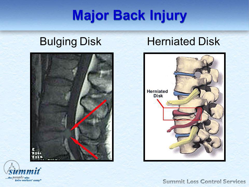 Major Back Injury Bulging Disk Herniated Disk