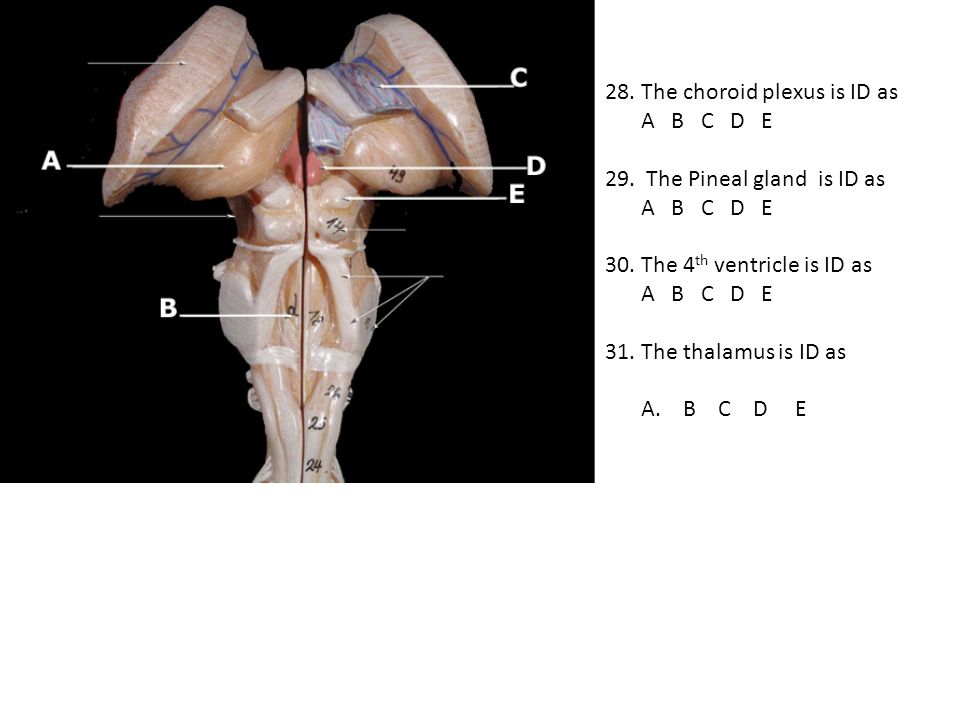 28. The choroid plexus is ID as