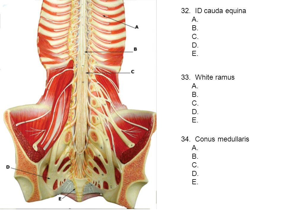 32. ID cauda equina A. B. C. D. E. 33. White ramus. A. B. C. D. E. 34. Conus medullaris.