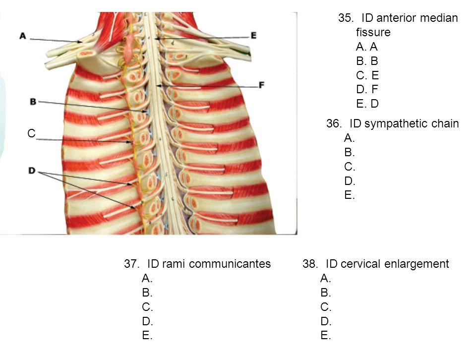 35. ID anterior median fissure