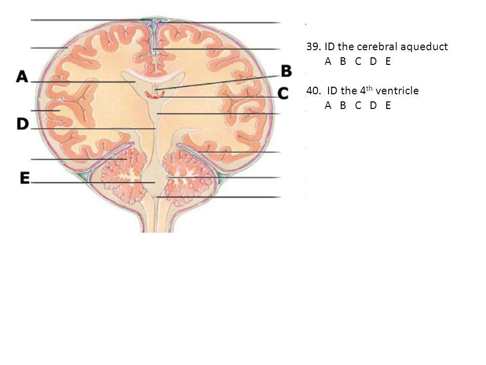 39. ID the cerebral aqueduct