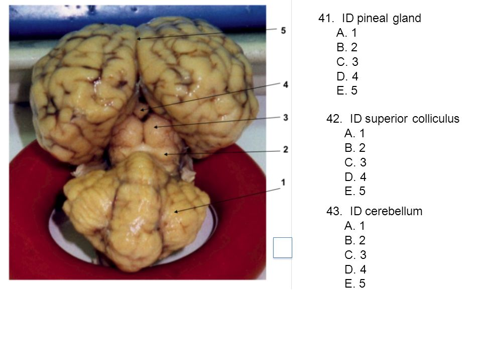 41. ID pineal gland A. 1. B. 2. C. 3. D. 4. E. 5. 42. ID superior colliculus. A. 1. B. 2. C. 3.