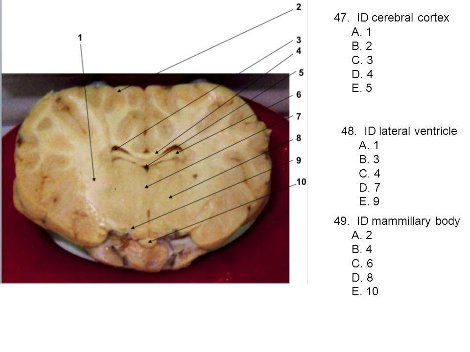 47. ID cerebral cortex A. 1. B. 2. C. 3. D. 4. E. 5. 48. ID lateral ventricle. A. 1. B. 3.