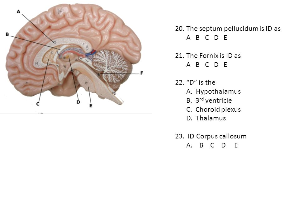 20. The septum pellucidum is ID as