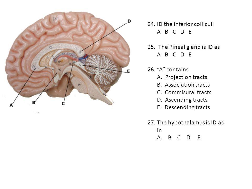 24. ID the inferior colliculi