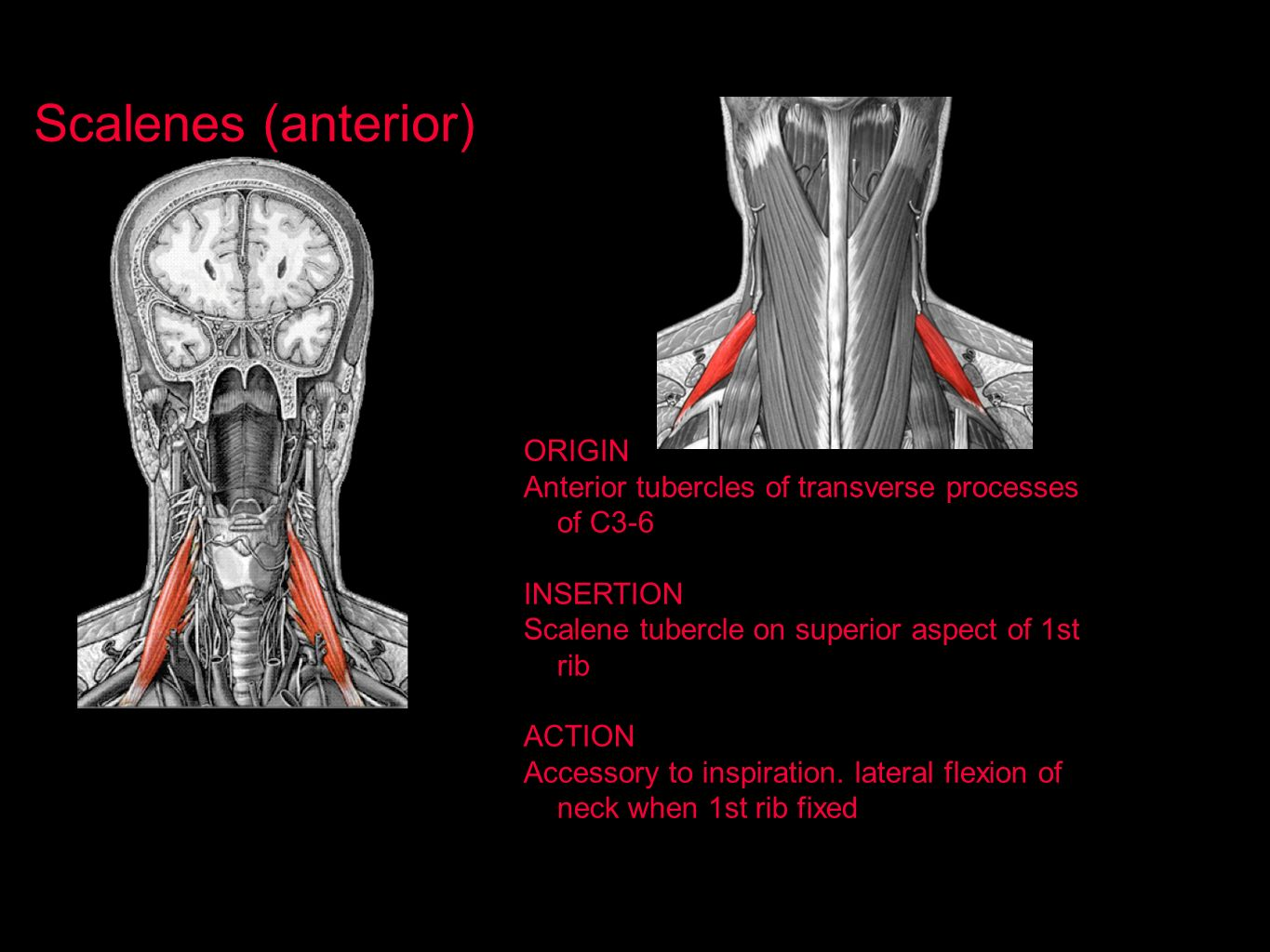 Scalenes (anterior) ORIGIN
