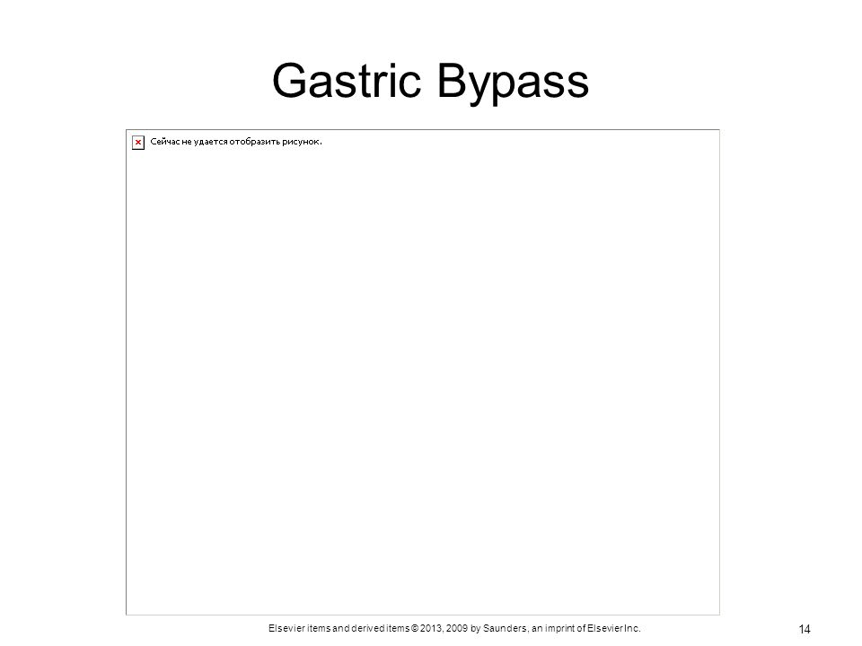 Gastric Bypass See Figure 29-1 on p. 642.