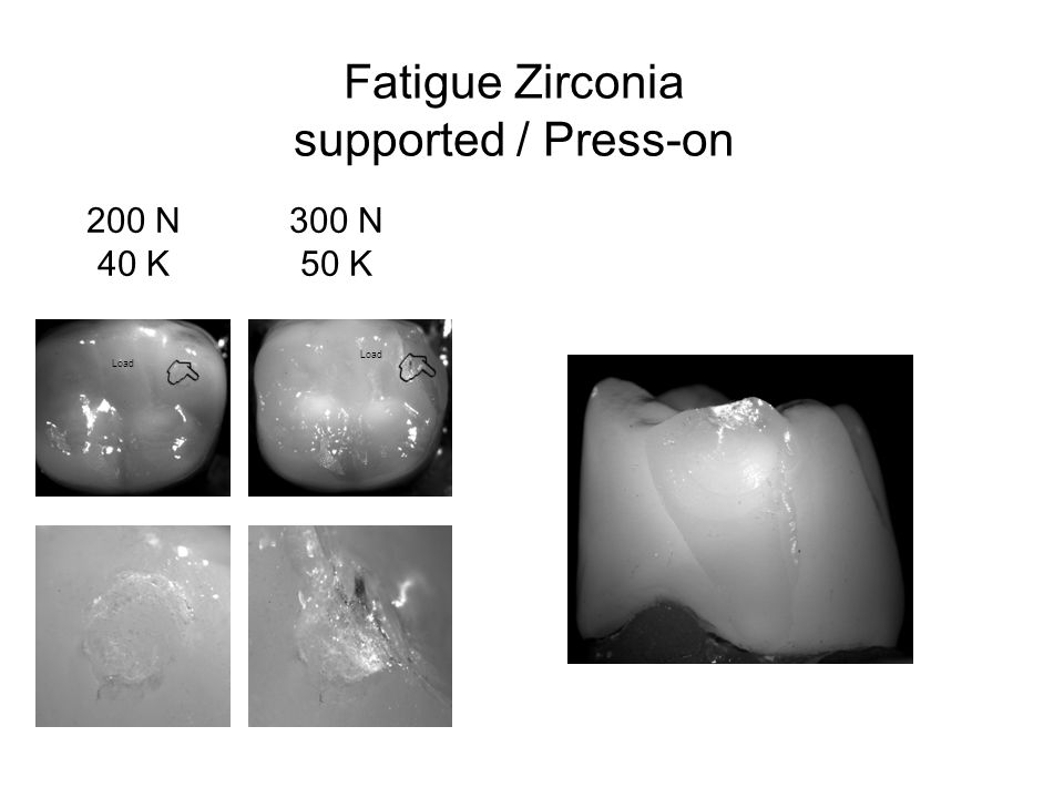 Fatigue Zirconia supported / Press-on