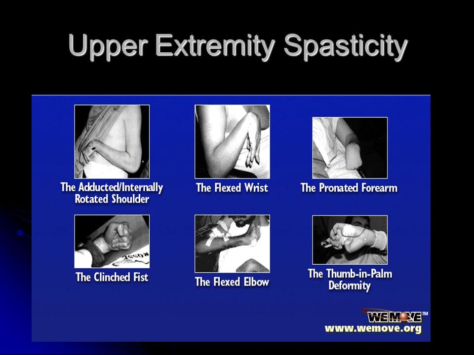 Upper Extremity Spasticity