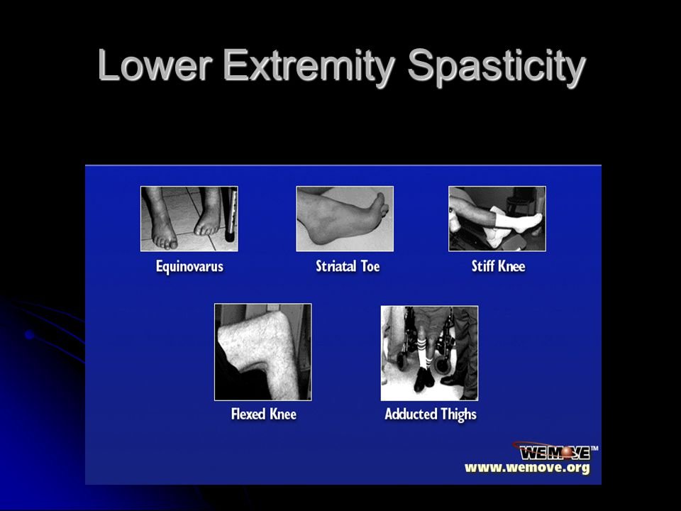 Lower Extremity Spasticity